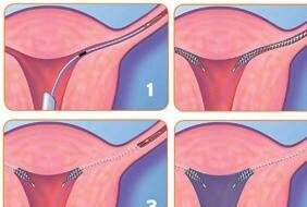 Photo_Etape_de_la_procedure_Essure_Dr_Bader_27_8_2009