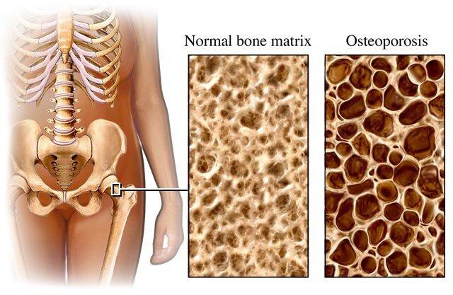 osteoporoseII