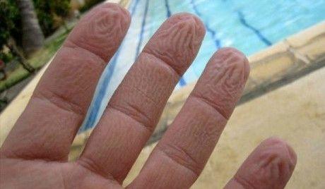 4Wrinkled-fingers-dunlop